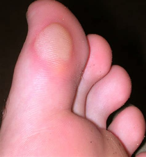 best treatment for blisters on blisters on toes pictures causes and treatment