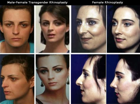 female to male transgender surgery before and after transgender female to male before and after quotes