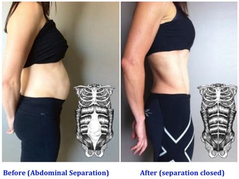exercises after abdominal surgery plastic surgery