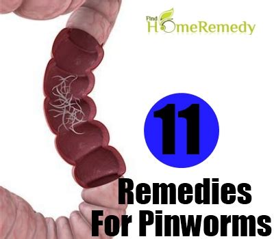 home remedies for pinworms treatments cure for