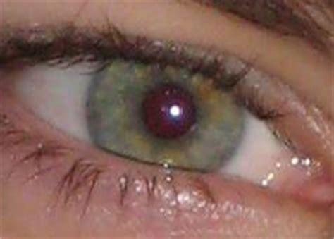 strange eye colors strange eye colorsm eye colors 171 mind