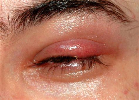 imagenes de ojos inflamados me ha salido un orzuelo