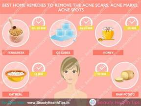 how to get rid of acne home remedies how to get rid of acne scars how to remove acne scars