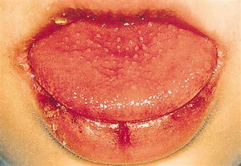 Kawasaki Disease Pictures by Kawasaki Disease Causes Symptoms Treatment Pictures