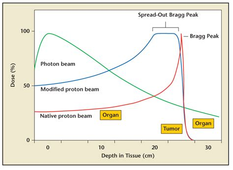 Proton Beam Treatment by Proton Beam Therapy For Localized Cancer 101