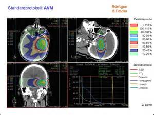 Proton Radiation Therapy Brain Tumor Indications Proton Therapy Center Cancer