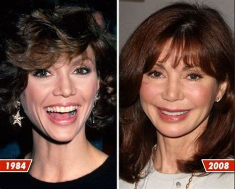 has fiona hughes had plastic surgery victoria principal then and now then and now pinterest