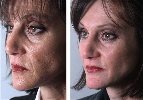 light chemical peel before and after dr steven denenberg s plastic surgery before and