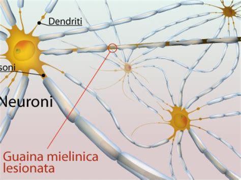 mielina e alimentazione sclerosi multipla malattia autoimmune demielinizzante
