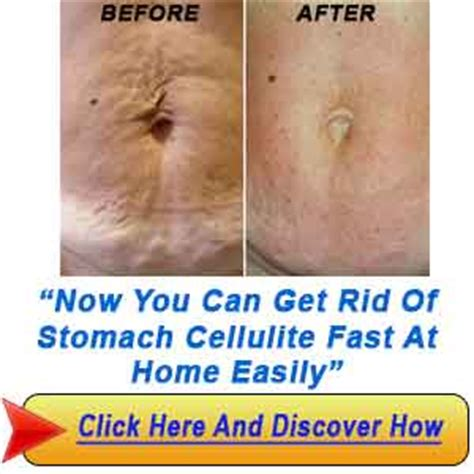 Cellulite 101 Treatment by How To Get Rid Of Cellulite On Stomach Fast 7 Simple Ways