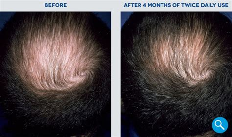 rogaine before and after pictures rogaine 174 before and after hair regrowth results rogaine 174