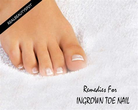 Does Hair Razor Detox Work by 10 Top Home Remedies For Ingrown Toenail That Really Work
