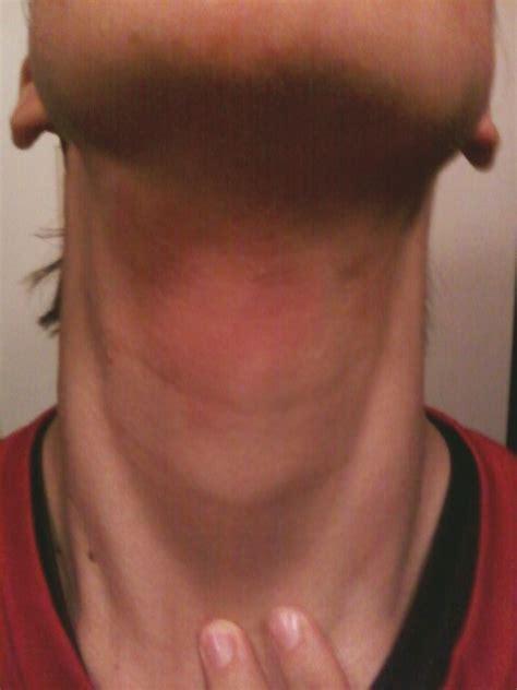 rash on neck rash on neck auto design tech