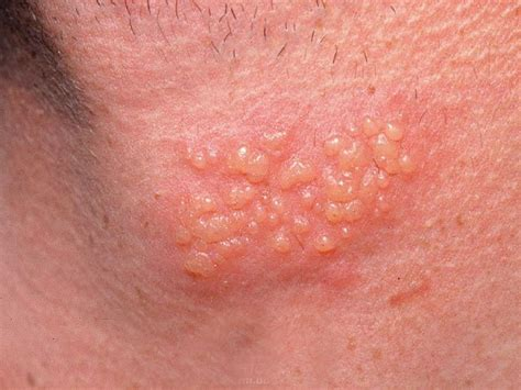 best herpes treatment 28 best images about treat herpes or cold sores with
