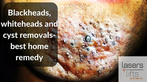 blackheads whiteheads and cyst removal best home