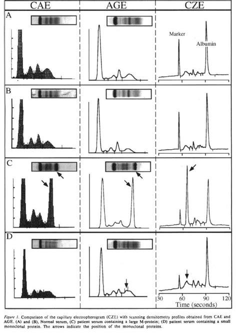 s protein electrophoresis interpretation serum protein electrophoresis interpretation