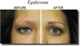 Permanent makeup before and after eyebrows brows before and after 1