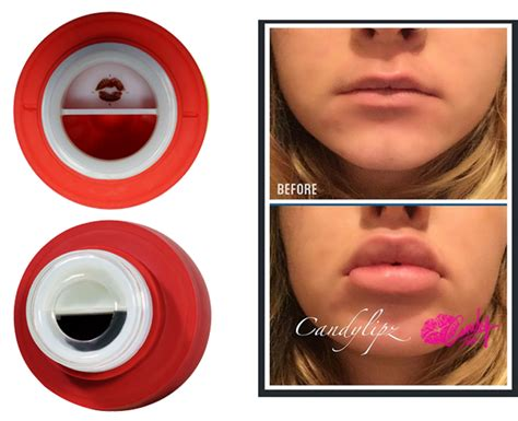 Lip Plumbing by Glasses Not Designed For Lip Plumping Learn Why