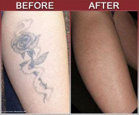 tattoo removal faq our removal faqs removal