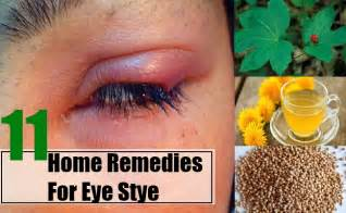 home remedies for stye what is a stye on the eye how to get rid of a stye in your