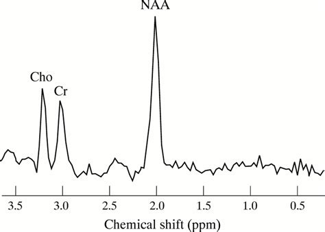 n acetylaspartate creatine ratio reduction in temporal n acetylaspartate and creatine or