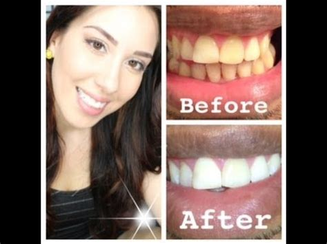 my at home teeth whitening routine with before and after