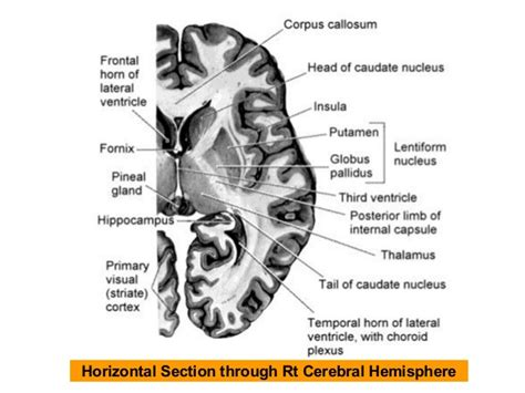 horizontal section of brain cerebrum sections for revision