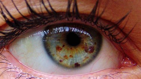 spell to change eye color get lighter with eye freckles fast biokinesis