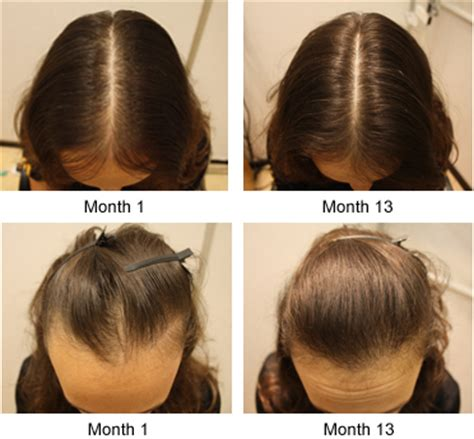 female pattern hair loss during pregnancy how to lighten your dark body parts lighten your dark