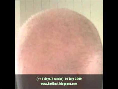 hair growth rate after chemo rate of hair growth after chemo hair growth rate after
