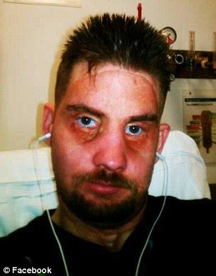 hunter thore ex us soldier reveals face transplant results after