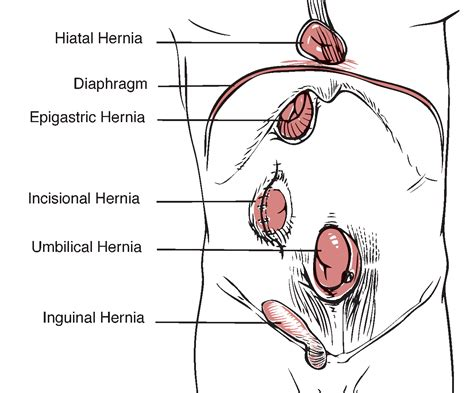 diagram of inguinal hernia hernia locations diagram 28 images hernia emedmd