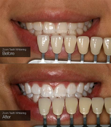 zoom teeth whitening centro dental  richmond bc