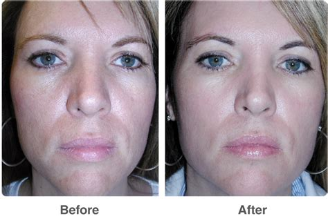 light chemical peel before and after chemical peels skin peels treatments by dr robert troell