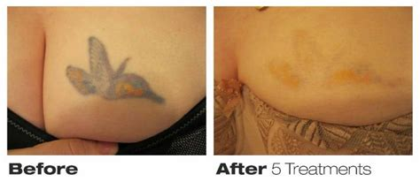precision laser tattoo removal precision laser removal toronto on 76 richmond