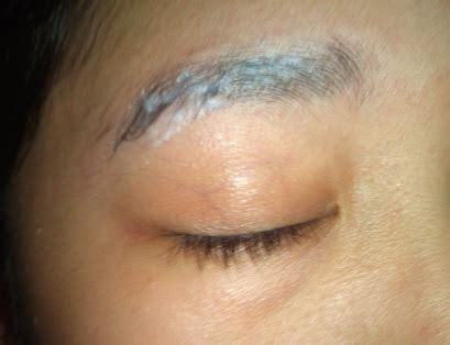 Does Hair Drying Cause Dandruff dandruff in eyebrows skin get rid remove naturally