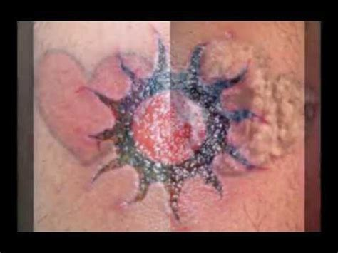 infected back tattoo youtube massive mrsa infection doovi