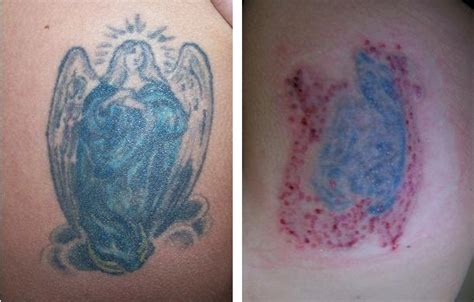 tattoo removal jackson ms laser surgery laser surgery laser removal ink