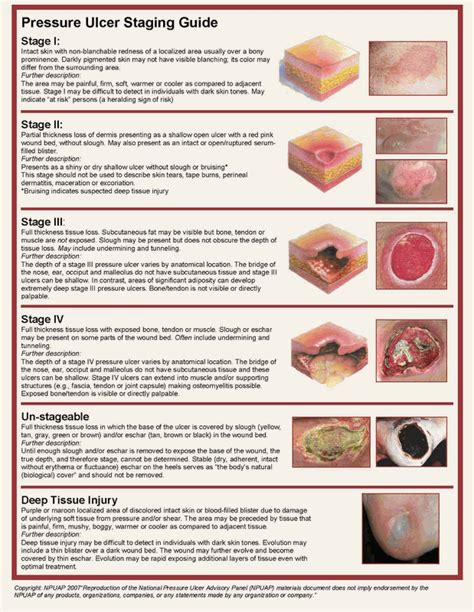 wound bed description pressure ulcer grading pictures to pin on pinterest