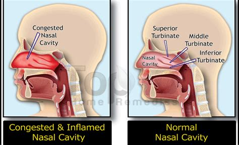 nasal congestion home remedies for toddler nasal congestion welcome to diaperch pregnancy and