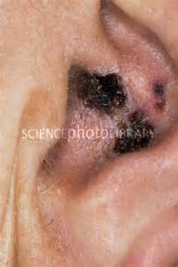what herpes zoster shingles breeds picture