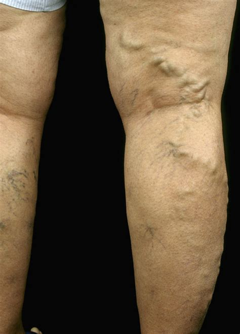8 Symptoms Of Varicose Veins by When I M Gaining Leg And I Notice My Spider