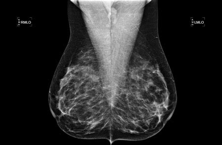mammogram images mammography mammography what to expect