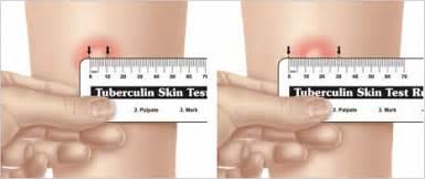 Reading the mantoux tuberculin skin test reaction left correct