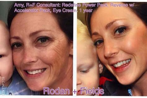 Lituhayu Skincare By Dr Emy rodan and fields fight spots and aging these are