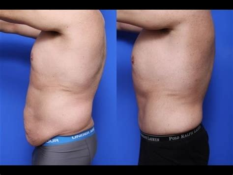 Best tummy tuck men before and after