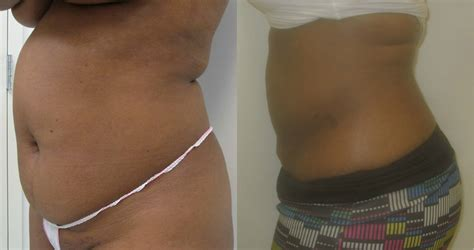 mini tummy tuck after c section lipo tummy tuck surgery westchester
