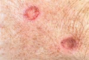 Bed Sores Pictures Technology To Help Treat Bed Sores