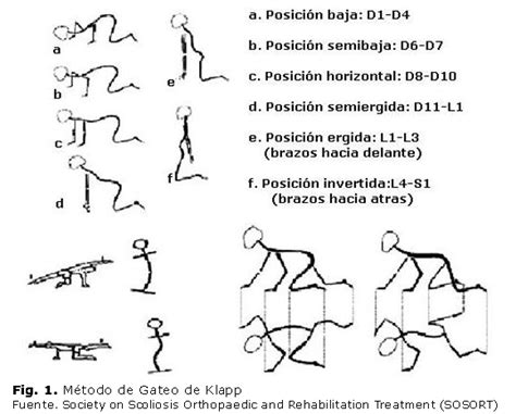 cadenas musculares scielo enfoque actual en la rehabilitaci 243 n de la escoliosis