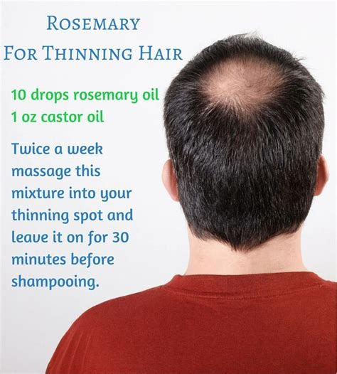 20 month hair thinning on top 25 best ideas about thinning hair remedies on pinterest